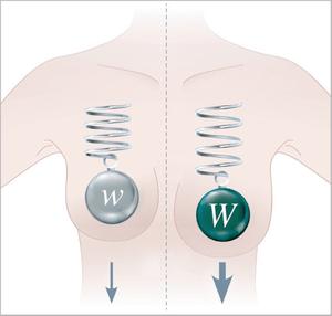 infografía mamaria