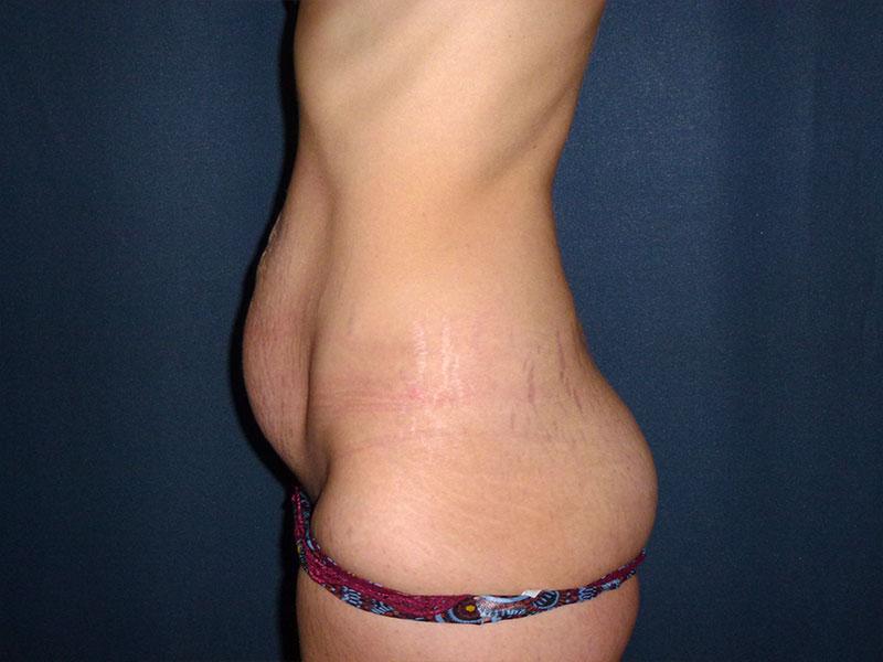 eliminación de grasa en el abdomen