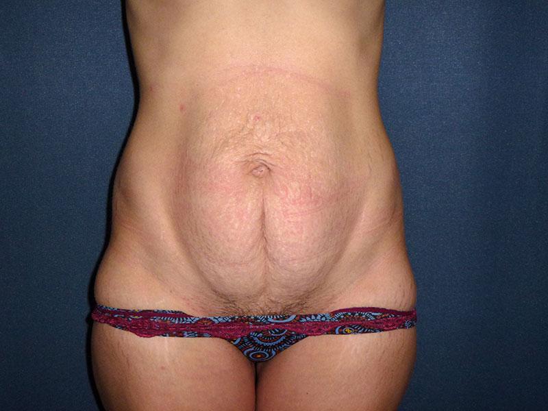 tratamiento para tu abdomen
