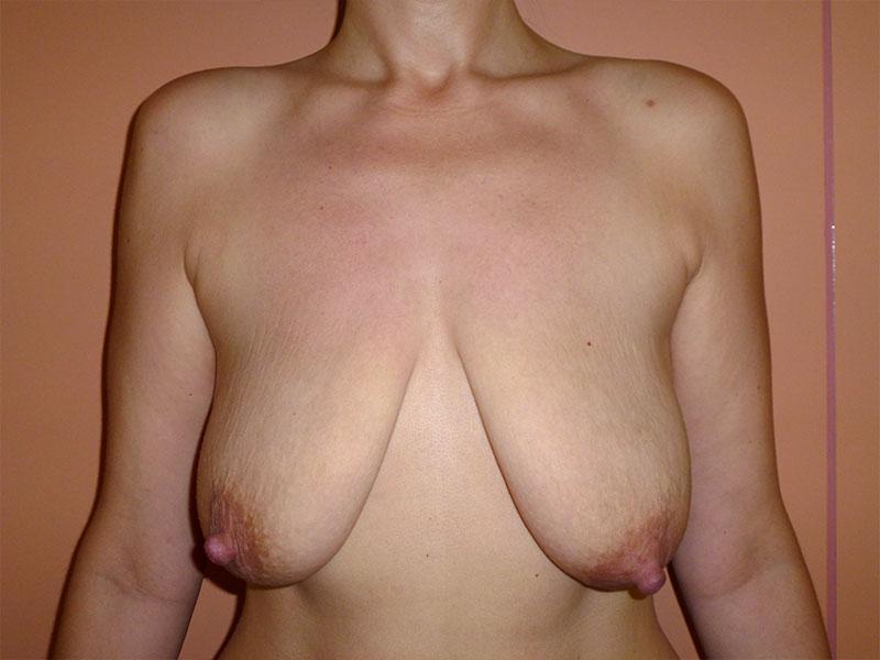 cirugía mastopexia efectiva