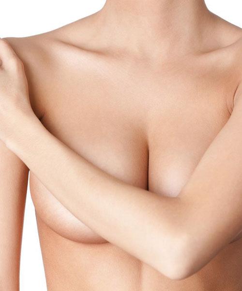 cirugía reducción de mamas