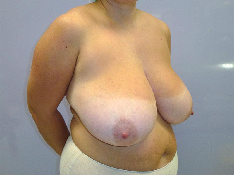 reducción de mama fiable