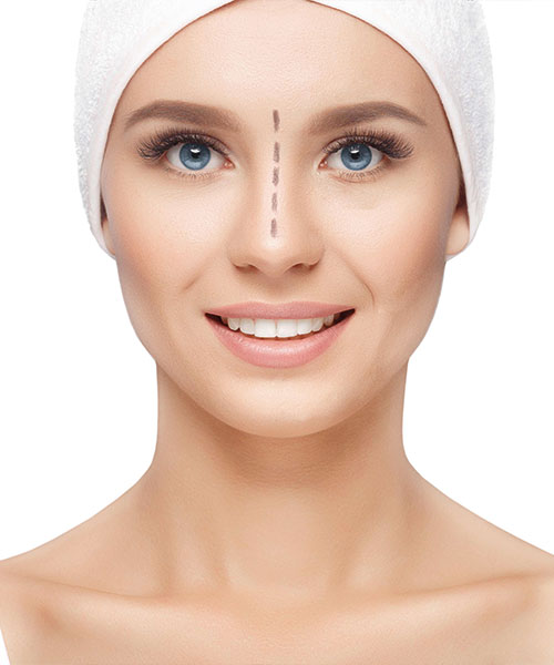 cirugía nariz rinoplastia