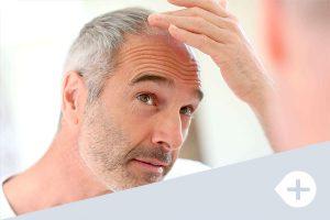 calvicie alopecia clinica luanco