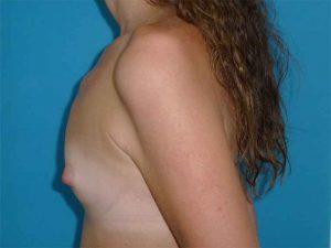 cirugía aumento mamario