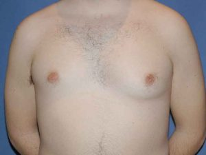 cirugía estética ginecomastia clínica luanco