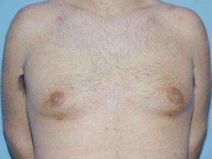 cirugía masculina en sevilla