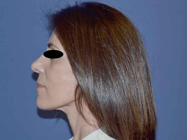 técnica lifting facial sevilla