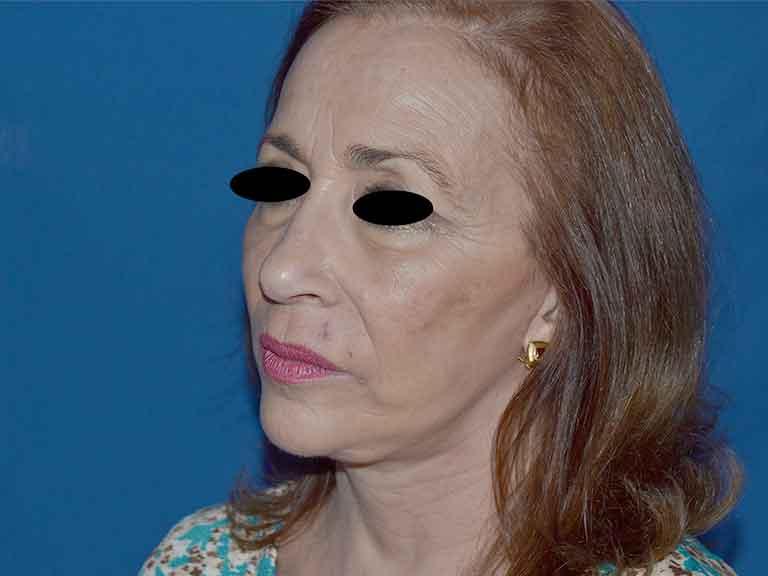 lifting tratamiento facial