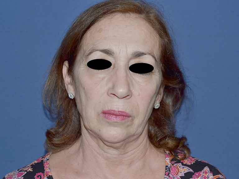 tratamiento facial efectivo sevilla