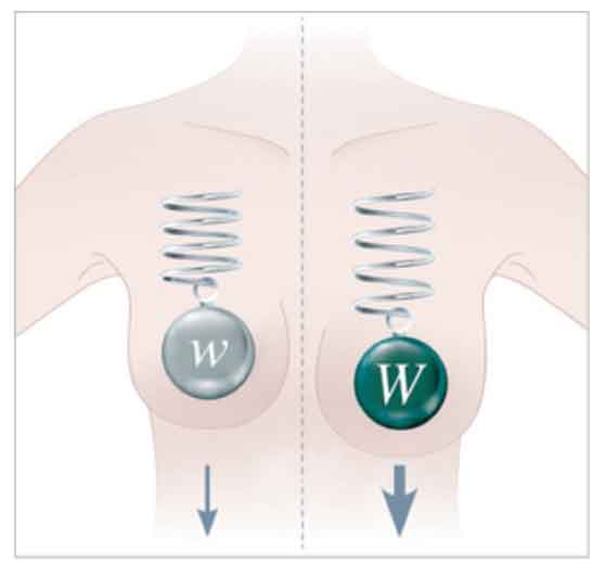 Mamoplastia de aumento calida asegurada