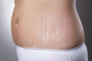 El mejor tratamiento para estrías blancas técnica increíble