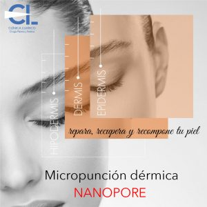 tratamiento con nanopore