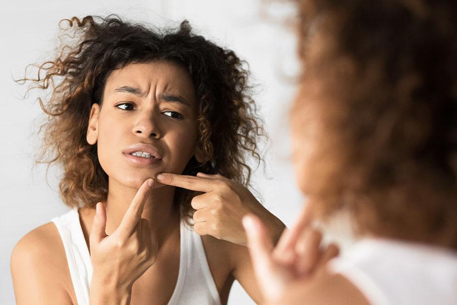 tratamiento láser acné una forma efectiva de solucionarlo