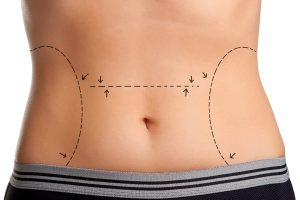 Abdominoplastia precio increíble. para un abdomen liso
